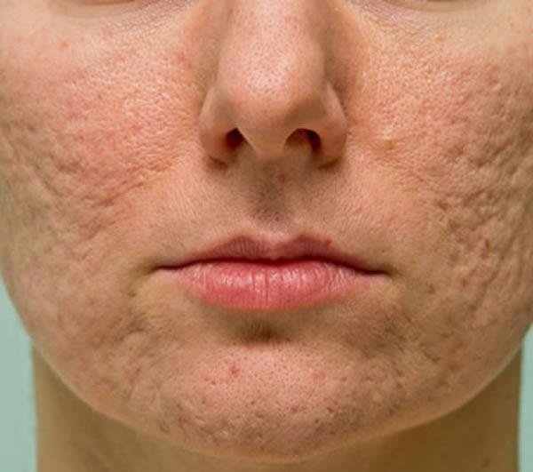 Laser p/ Cicatrizes de Acne